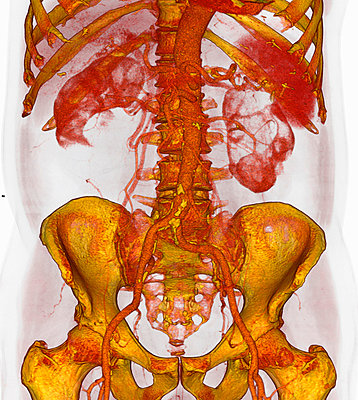3D CT scan of atherosclerotic plaque, lower aorta - p429m743891 by Callista Images