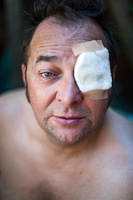 Man with surgical dressing covering eye - p1047m1532027 by Sally Mundy