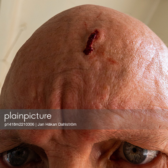 Angry man with wound in forehead - p1418m2210306 by Jan Håkan Dahlström