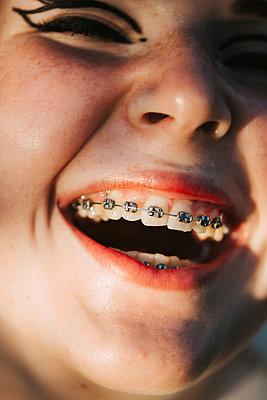 Teenager Closeup Brace lauging - p1507m2196525 by Emma Grann